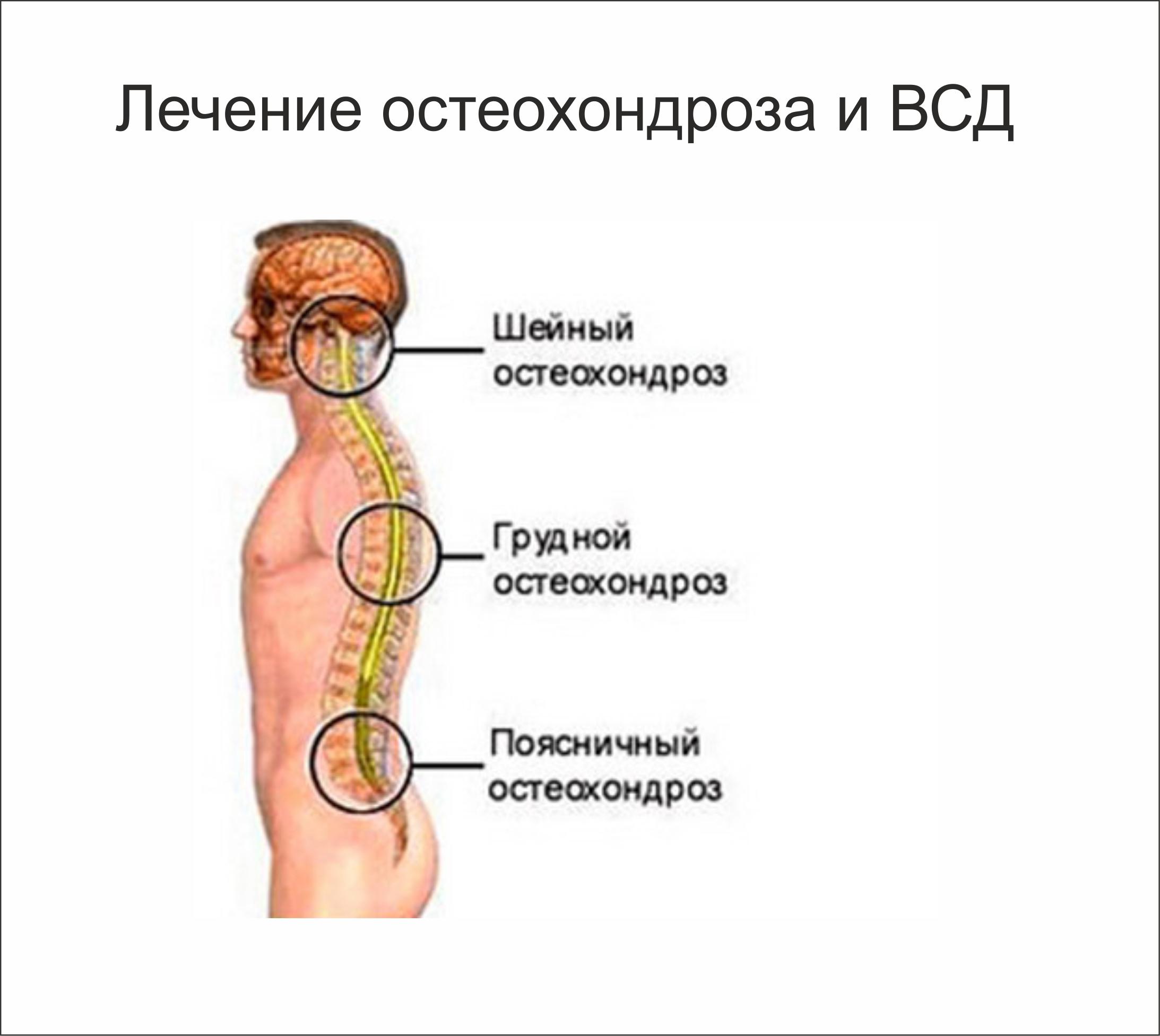 Остеохондроз. Отзывы о лечении остеохондроза 91